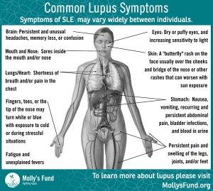 5.5.2014-web-Lupus-Symptoms-Graphic-Revised-