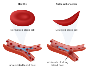 sickle_cell_anemia-01
